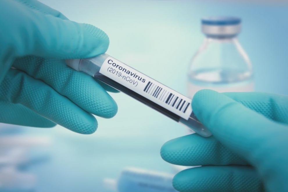 9 души са диагностицирани с коронавирус в община Сливен през изминалата седмица