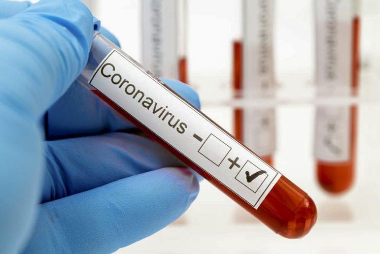 163 нови случая на COVID-19 са потвърдени у нас през последното денонощие