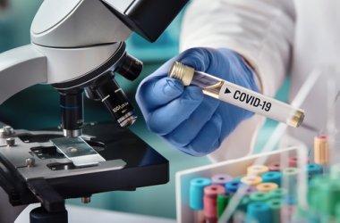 216 нови случая на COVID-19 в страната