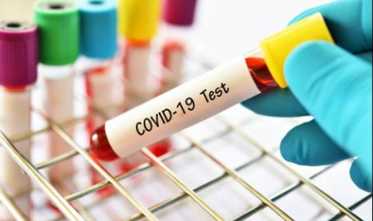Регистриран е спад на новите случаи на COVID-19 в община Сливен
